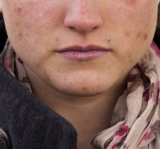 El tratamiento contra el acné patentado en la UGR no crea resistencias bacterianas y carece de efectos secundarios.