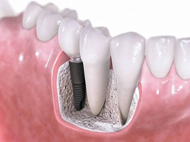 El recubrimiento promueve la generación de hueso alrededor del implante