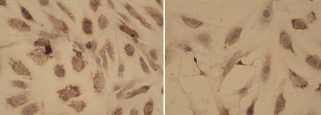 Tinción de colágeno que compara modelos de mielofibrosis
