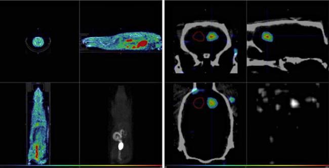 Imagen PET/CT (CNA)