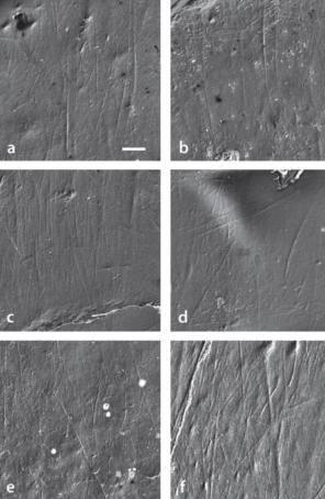 Imagen de microscopía electrónica de rastreo del patrón de microestriación bucal de los especímenes estudiados de A. anamensis(a-e) y de l'A. afarensis.(f)