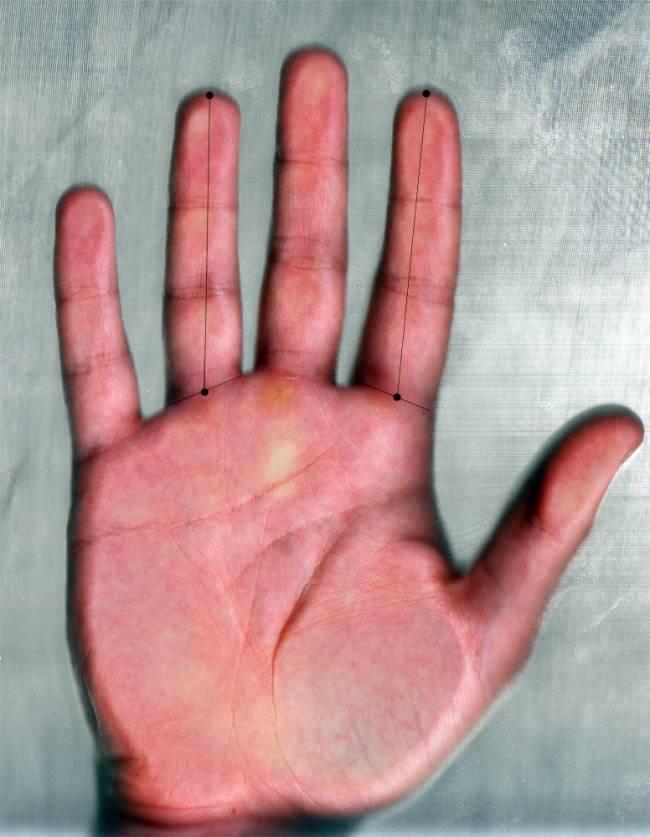 El ratio digital se obtiene al dividir la longitud del dedo índice entre la longitud del dedo anular de la misma mano.