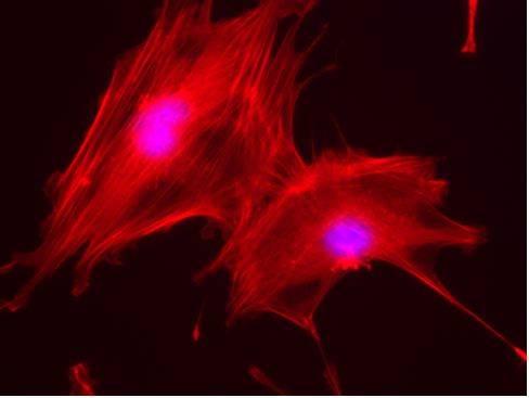 Osteoblastos de ratón creciendo sobre matrices 3D desarrolladas a partir de residuos de la industria alimentaria.