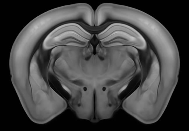 Cerebro de ratón