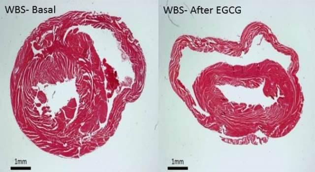 Secciones histológicas de la pared ventricular del corazón de modelos de síndrome de Williams-Beuren