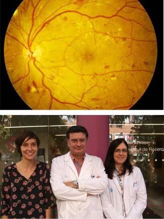 retina en estadios iniciales de la retinopatía diabética