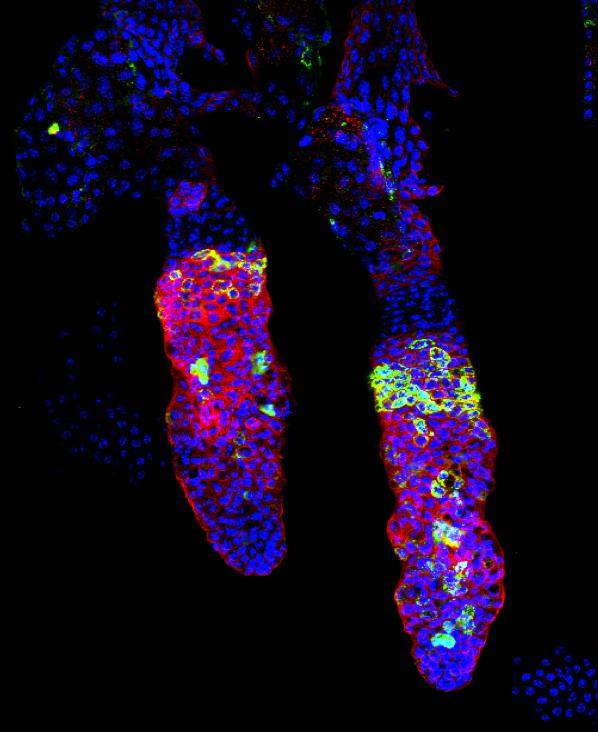tinción de células madre