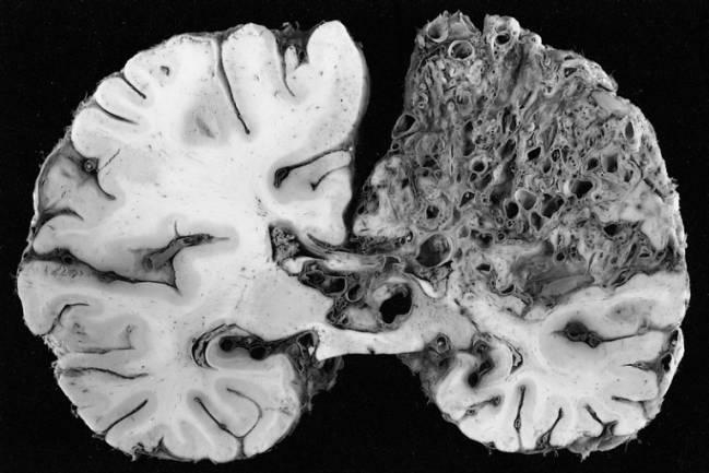 Deformación arteriovenosa en el hemisferio izquierdo típica de la enfermedad. / Wikipedia