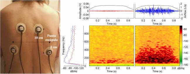 Gráfico que muestra la intensidad del sonido respiratorio en ambos lados de un paciente con parálisis unilateral, con el lado paralizado a la izquierda. / IBEC
