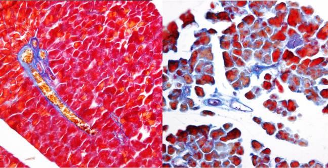 Comparación pancreática, sin y con supresión del gen Wt1