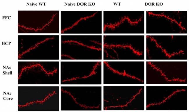 Figura: Cambios neuronales inducidos por el consumo de chocolate en ratones que no expresan el receptor DOR (DOR KO) y ratones normales (wild type). DCEXS-UPF