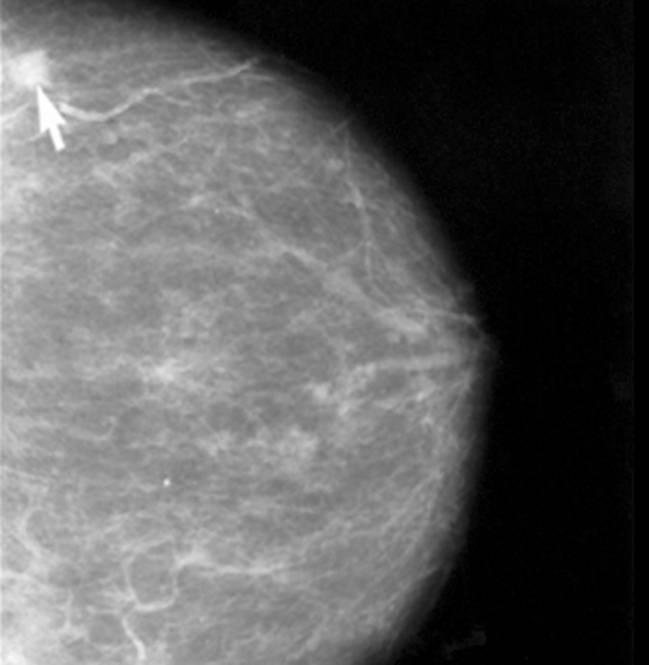 Un receptor de cannabinoides promueve respuestas pro-tumorales en un subtipo de cáncer de mama