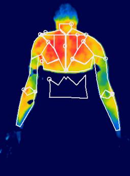 El estudio del Cidif de Aspaym analiza los factores de riesgo del dolor y la funcionalidad de la articulación en sujetos sedentarios y deportistas