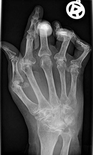 Radiografía de un paciente con artristis reumatoide. Foto: Bernd Brägelmann.