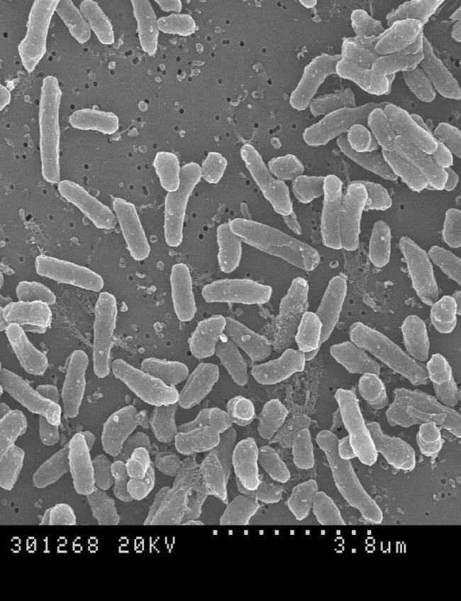 Fotografía de Micobacterium brumae al microscopio
