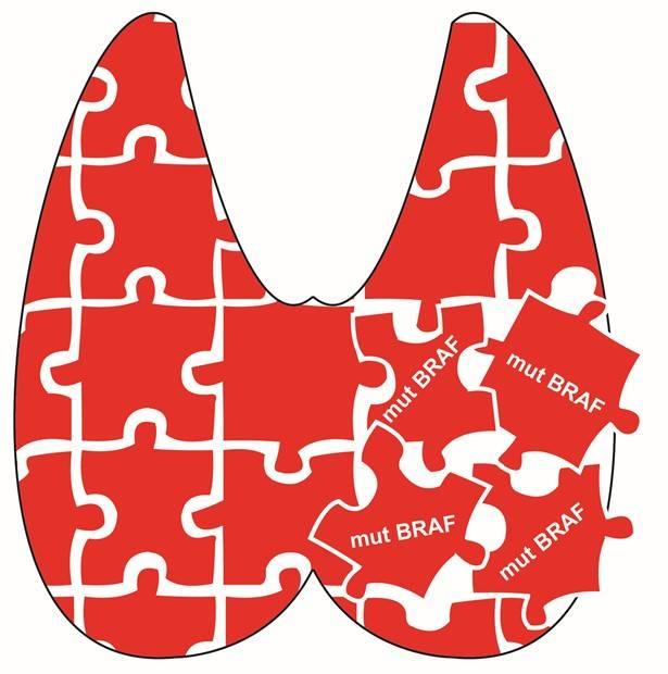 Esquema que representa una glándula tiroidea como un puzzle. La desorganización de estas piezas por la mutación del oncogén BRAF (mut) es determinante junto con la edad para el mal pronóstico