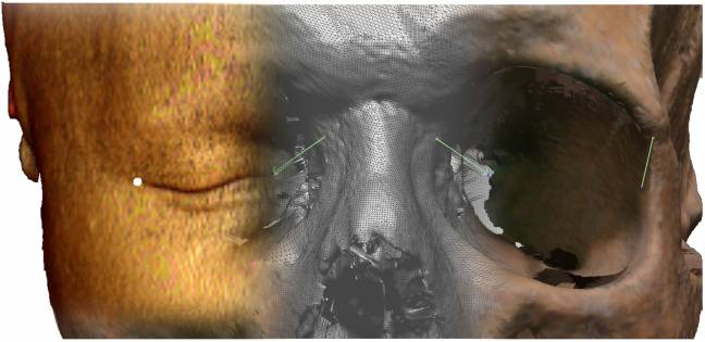 Vista de un TAC facial y de la imagen tridimensional de un cráneo.
