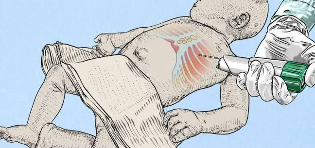 Esquema de una Autopsia Mínimamente Invasiva (Imagen de Xabier Sagasta)