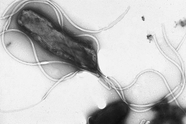 Helycobacter pylori. Imagen wikipedia