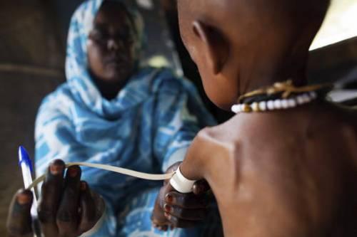 Una enfermera mide el brazo de un niño con malnutrición. / Albert González