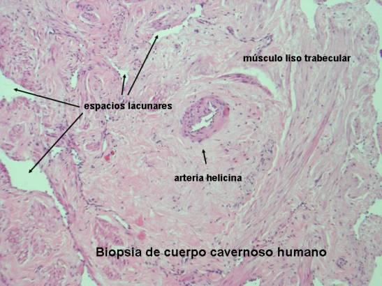 disfunción eréctil del músculo del ano